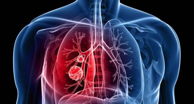 que es cancer al pulmon