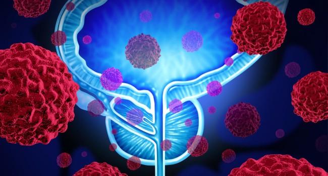 tratamientos nuevos para el cáncer de próstata 2