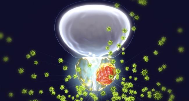 radioterapia de próstata y alrededores después de una cirugía radical