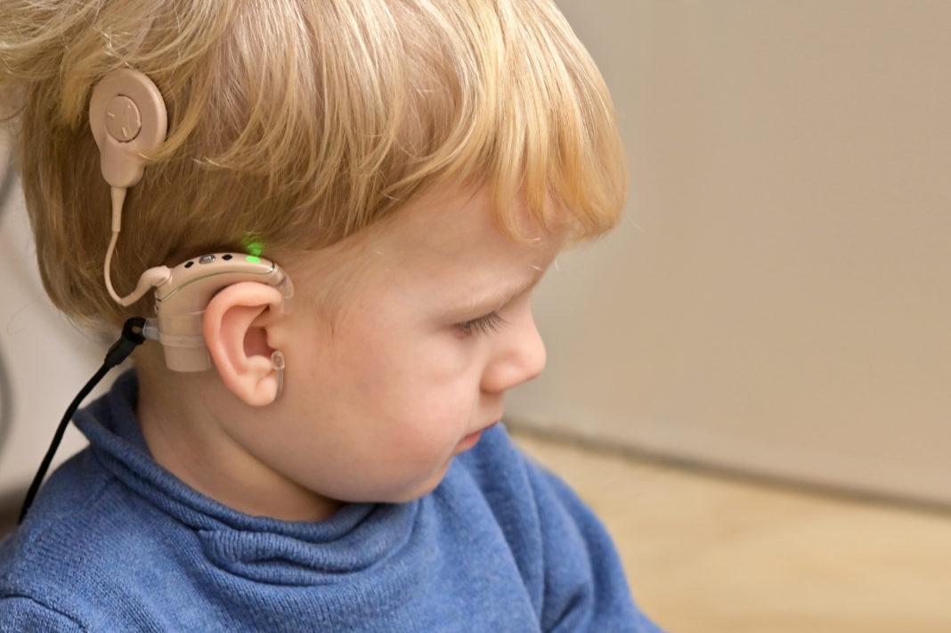 implante coclear en un niño