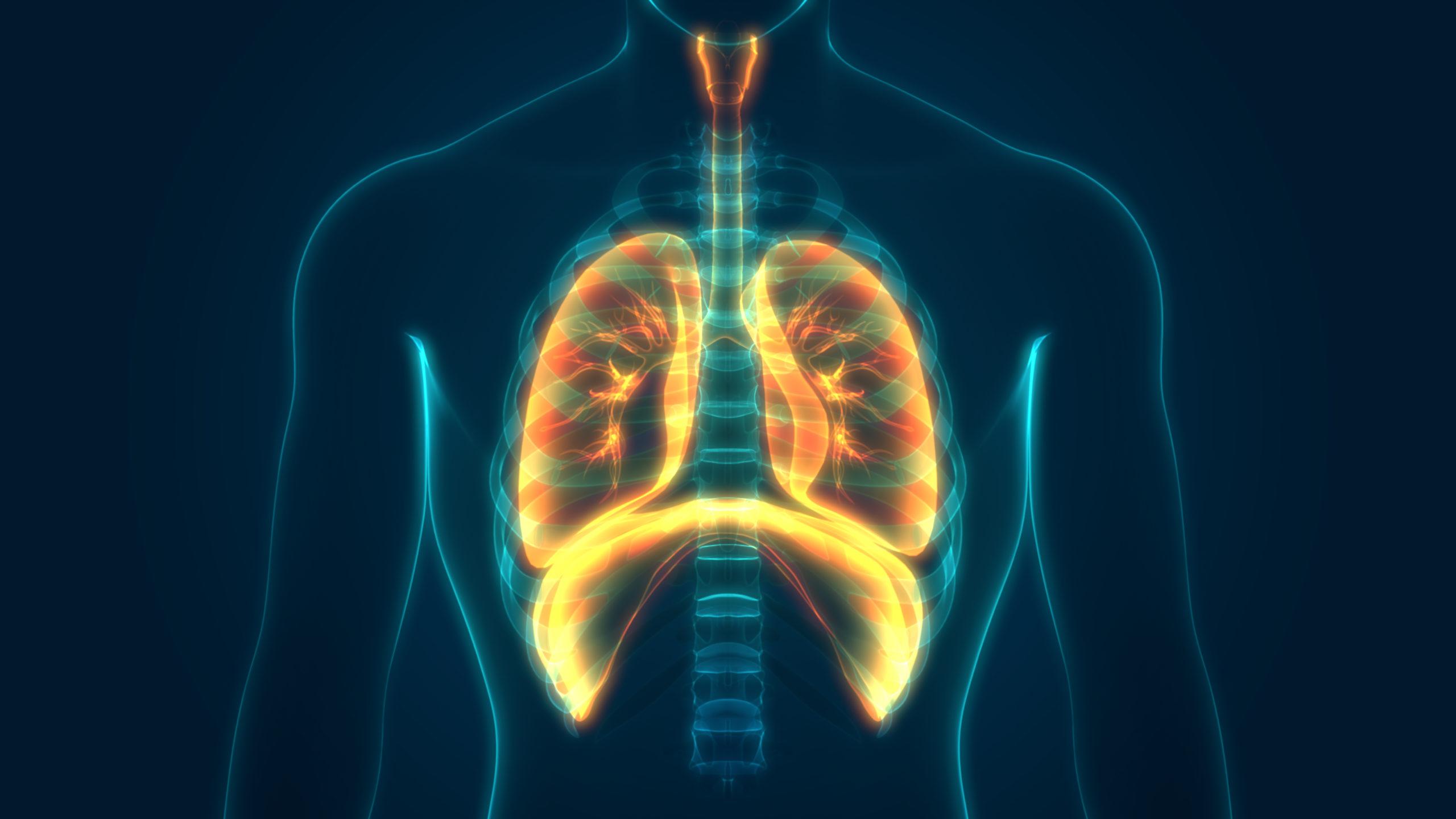 La tasa de mortalidad en pacientes COVID-19 con EPOC es el doble que la de  aquellos sin esta enfermedad crónica - Gaceta Médica