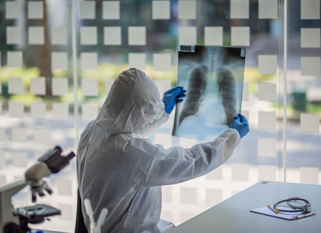 investigador covid-19 órganos