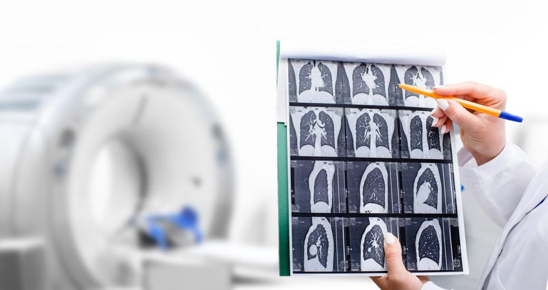 cáncer de pulmón, tórax, médico, sanitario, tratamiento escáner, resonancia